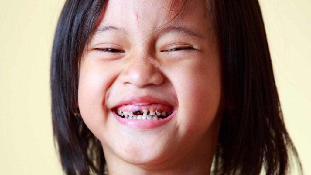 Is Zevia Soda Bad For Your Teeth